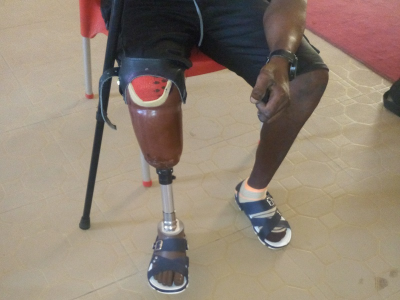 Below-knee Prosthesis suspended with Belt and cuffs