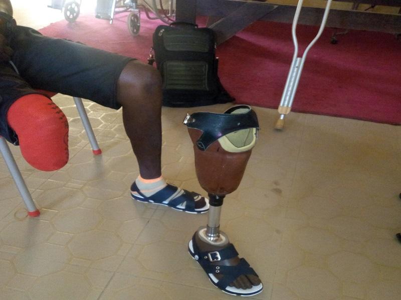 man with artificial leg 2